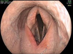 dorsal displacement of the soft palate